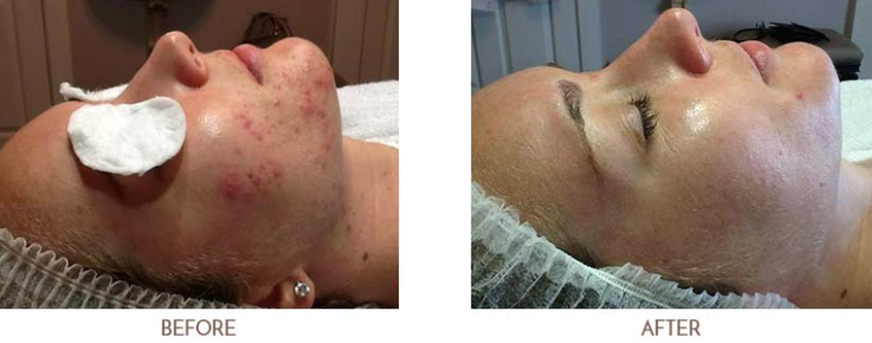 Acne Before Case 1